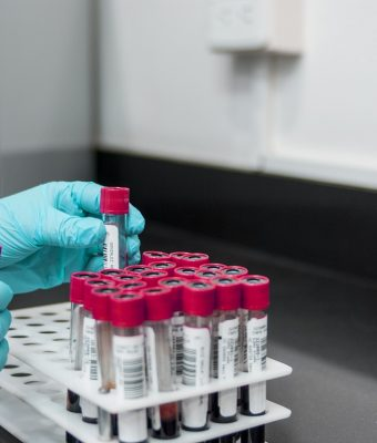 Homocysteina – co powinieneś o niej wiedzieć?